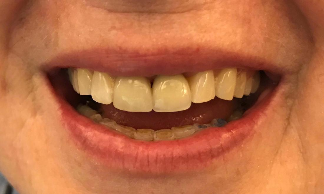 Implant Restoration of missing tooth