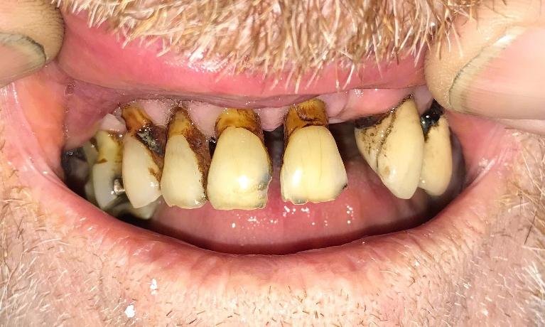 Complete-Dentures-Before-Image